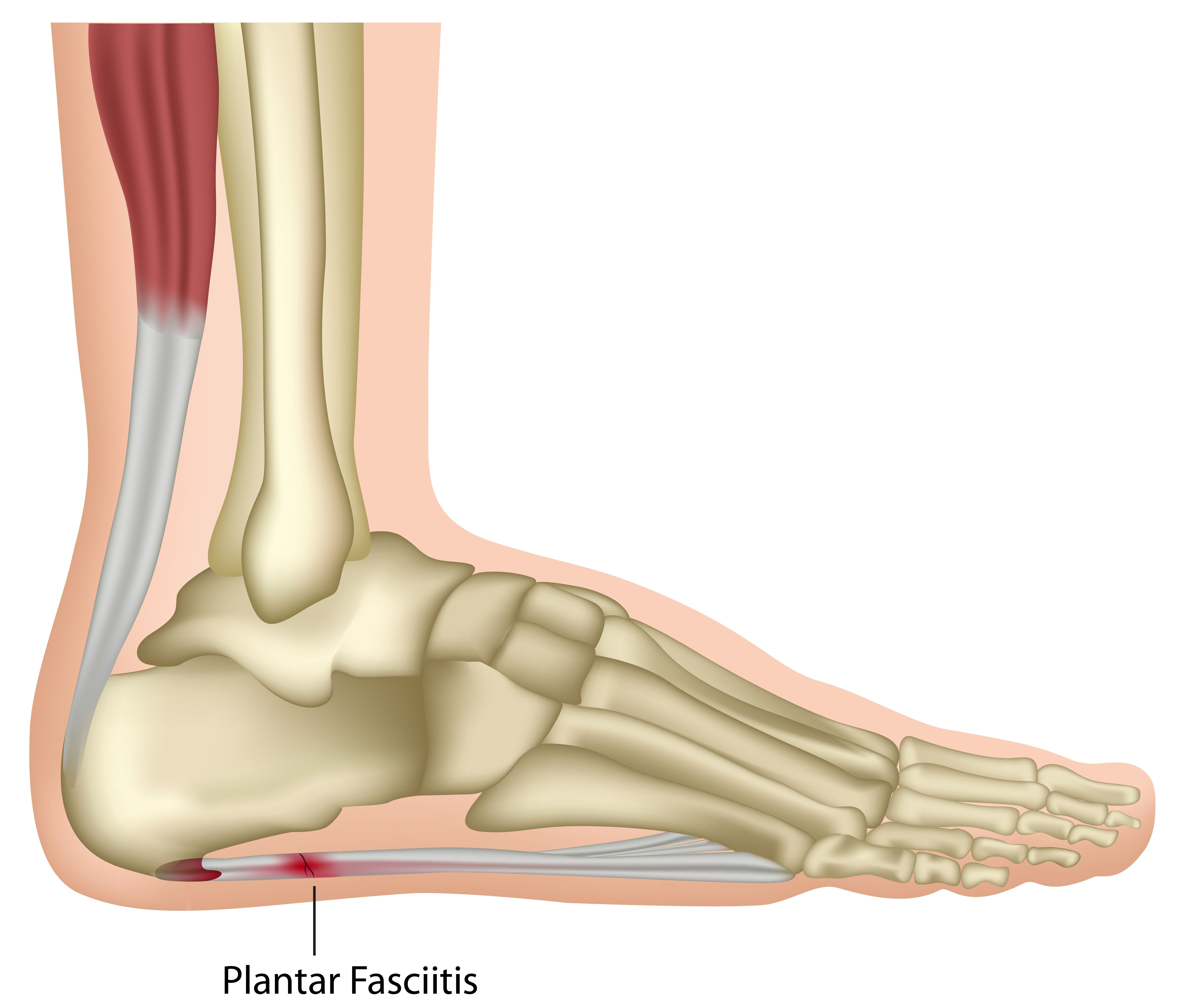 Plantar Fasciitis - Heel Pain Causing A Hobble In The Morning