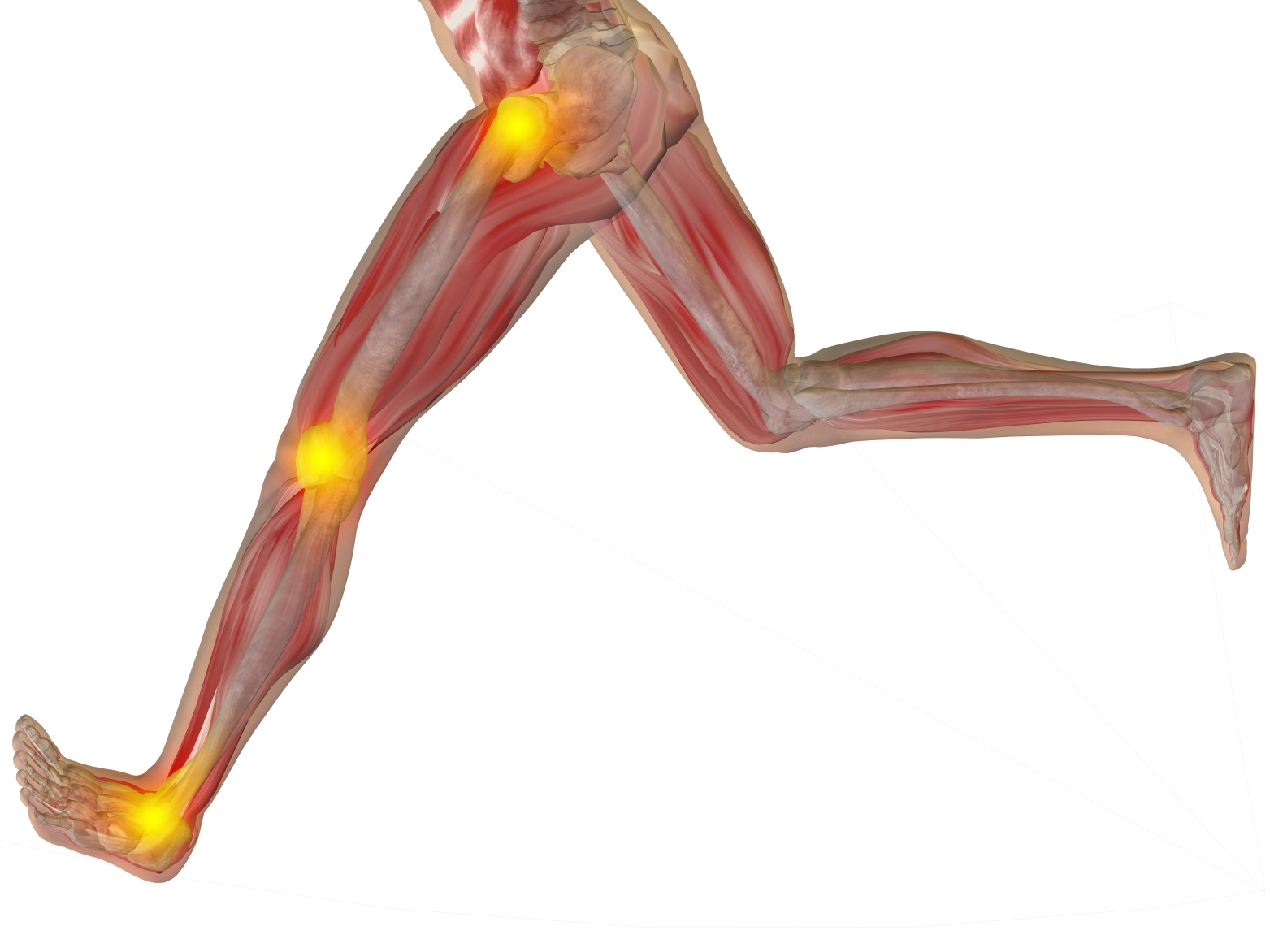 Runner\'s Knee: What Is It And Why Does It Hurt?