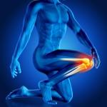 Iliotibial Pain