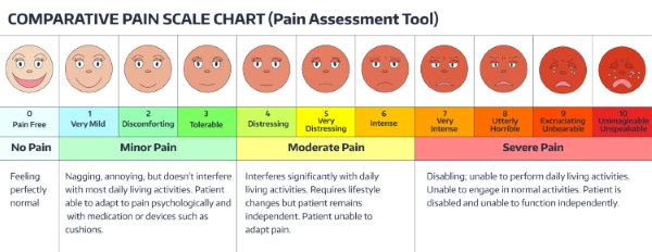 Comparitive Pain Assessment Chart