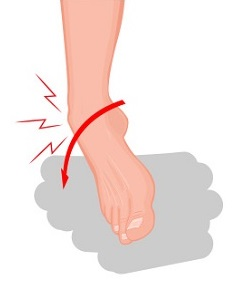 Ankle Sprain Mechanism